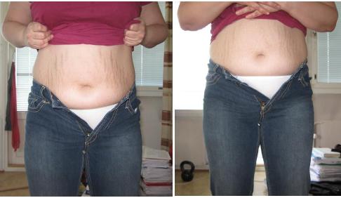 laihdutus ennen ja jälkeen kuvat edestä